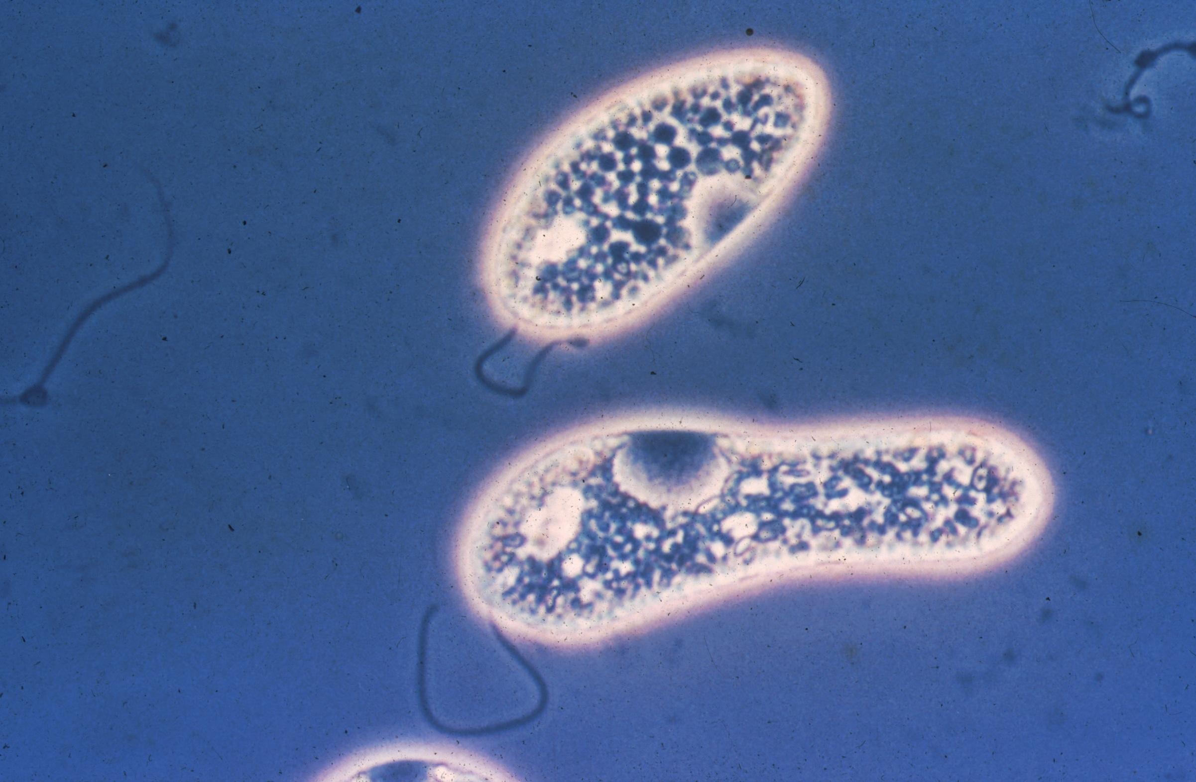 Protista algae