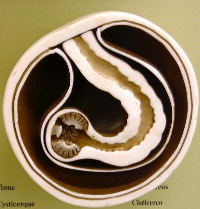tapeworm cyst